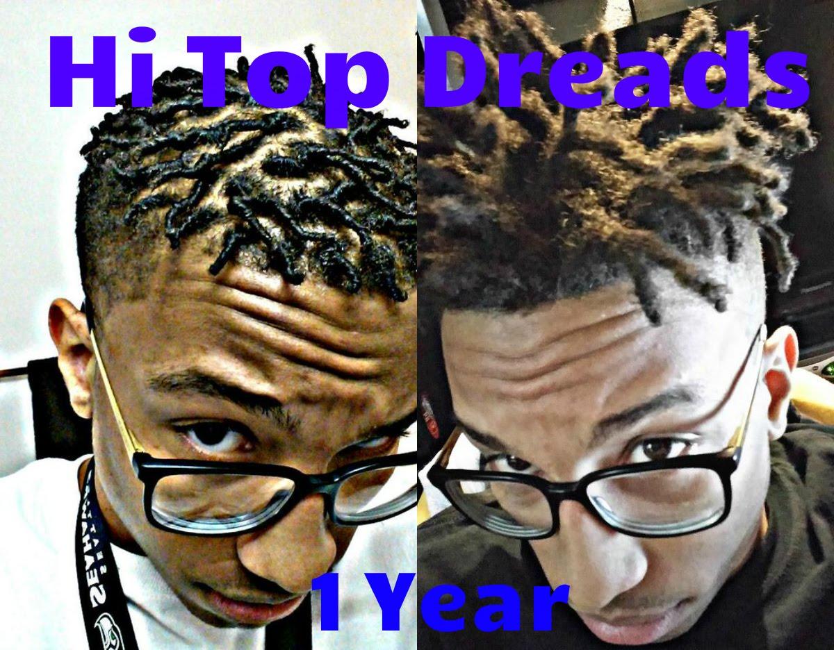 1 Year Hi Top Semi Freeform Dreads Journey Dread Videos